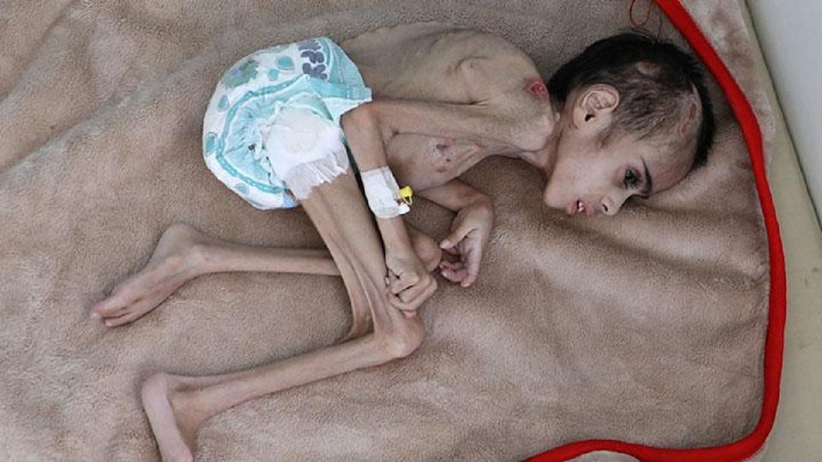 PBB: 400 Ribu Anak Yaman Bisa Mati Kelaparan Tahun Ini